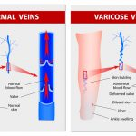 varicose veins. yoga therapy, inversions